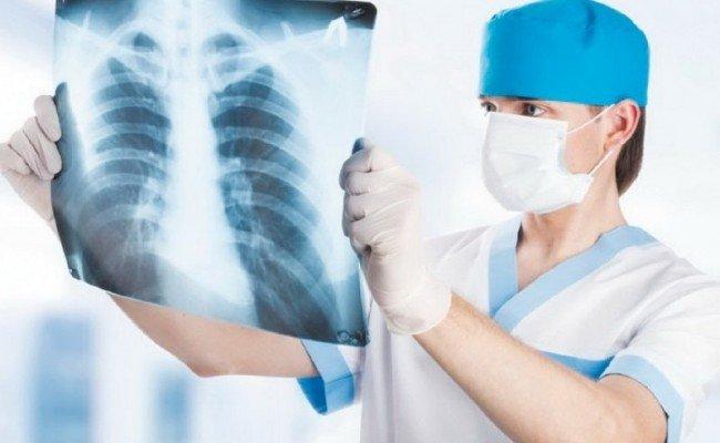Полтавцям розповіли, як убезпечитися від туберкульозу